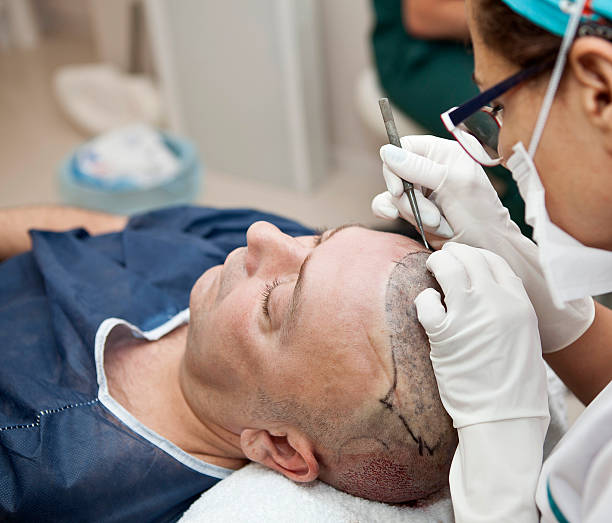 496 Hair Transplant Stock Photos, Pictures & Royalty-Free Images - iStock