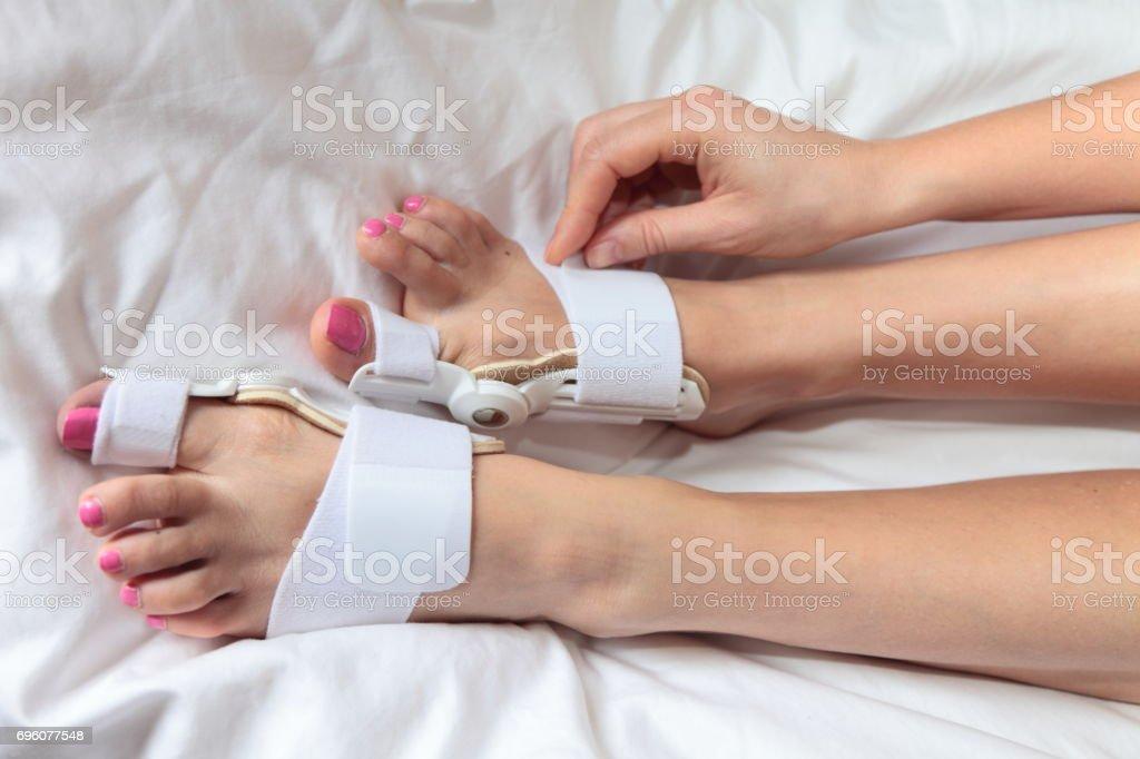 Hallux valgus. Bunion aid splint. stock photo