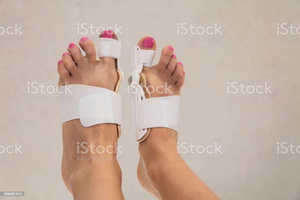 Hallux valgus. Bunion aid splint. stock photo