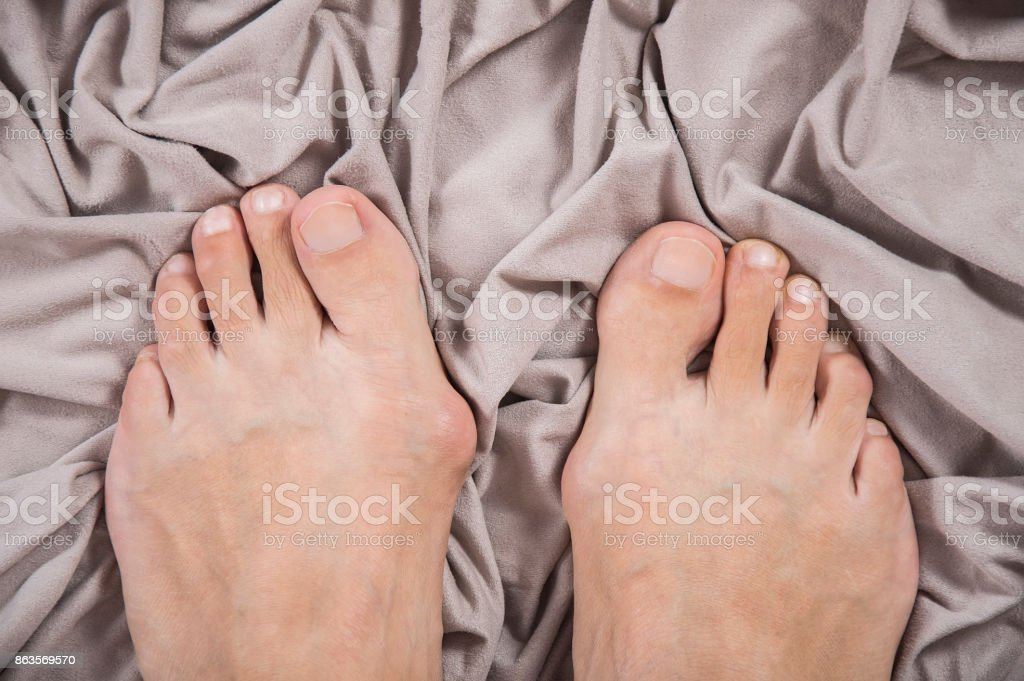 Hallux valgus, bunion in a leg on a beige soft background stock photo