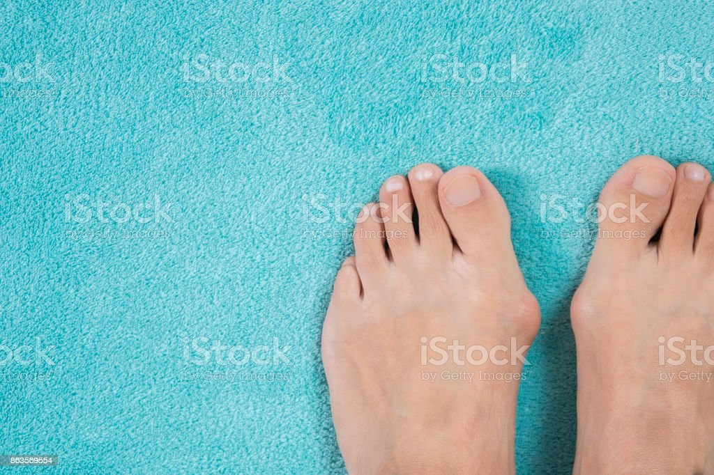 Hallux valgus, bunion in a leg on a blue soft background stock photo