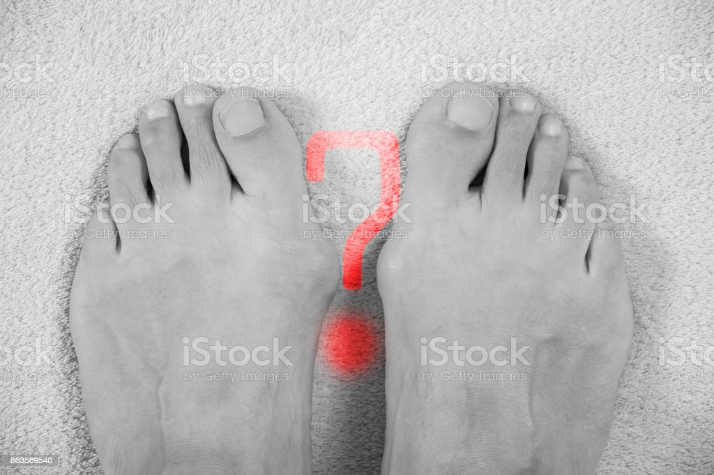 Hallux valgus, bunion in a leg on a gray soft background, with a question mark on them. A black-and-white photogrphy stock photo
