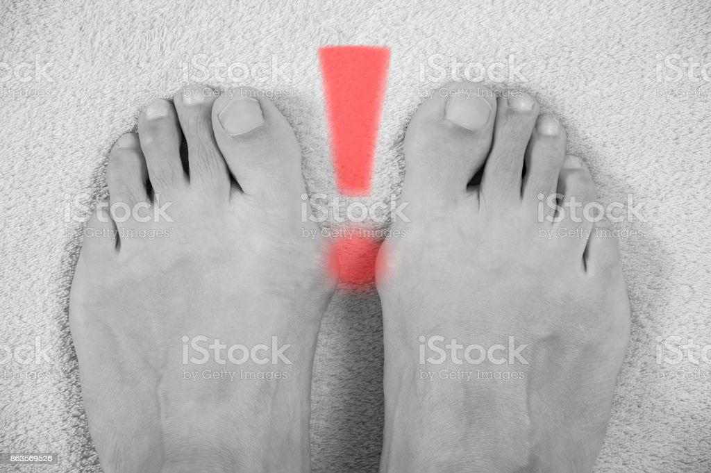 Hallux valgus, bunion in a leg on a gray soft background, with an exclamation point depicted on them. Black and white photogrphy stock photo