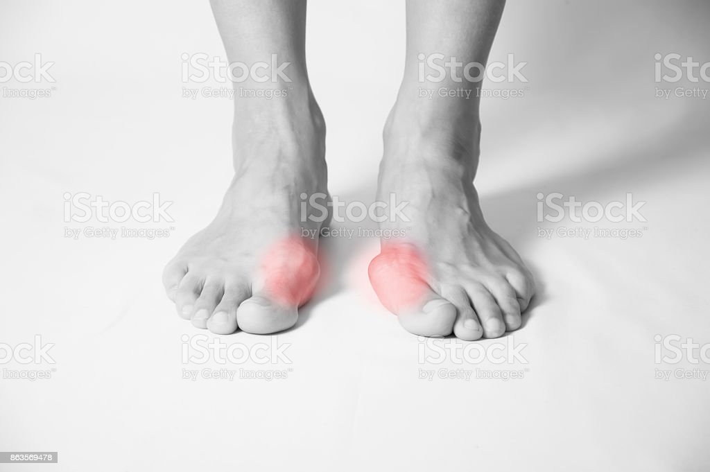 Hallux Valgus Bunion In Foot On White Background Stock Photo & More ...