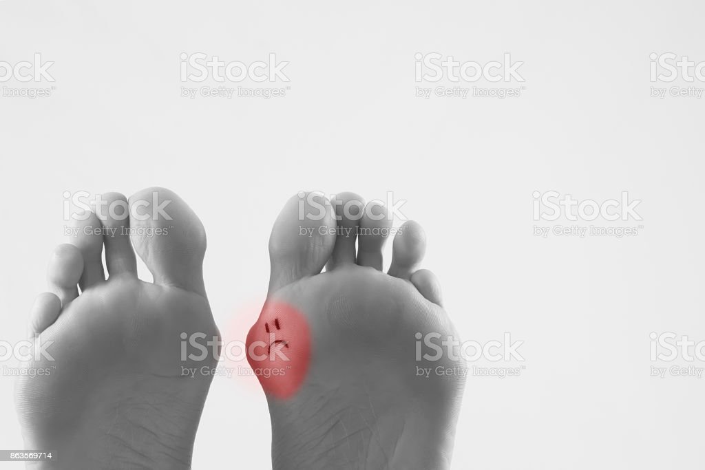 Hallux Valgus Bunion In Foot On White Background stock photo ...