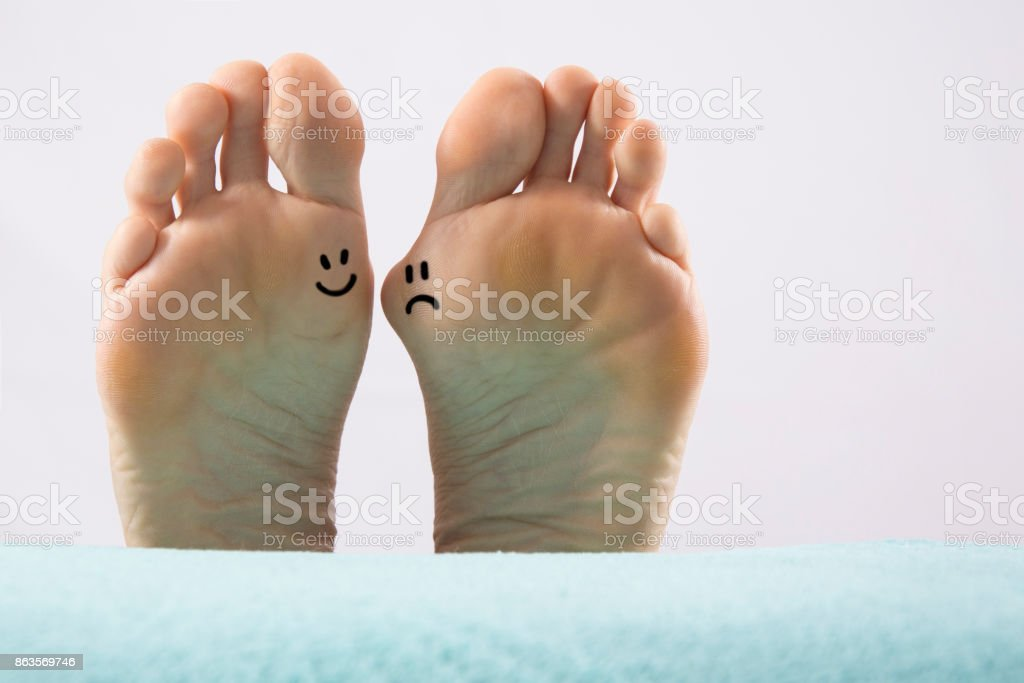 Hallux valgus, bunion in foot on white background stock photo