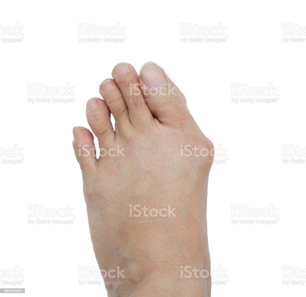 hallux valgus bunion in foot stock foto royalty free istock