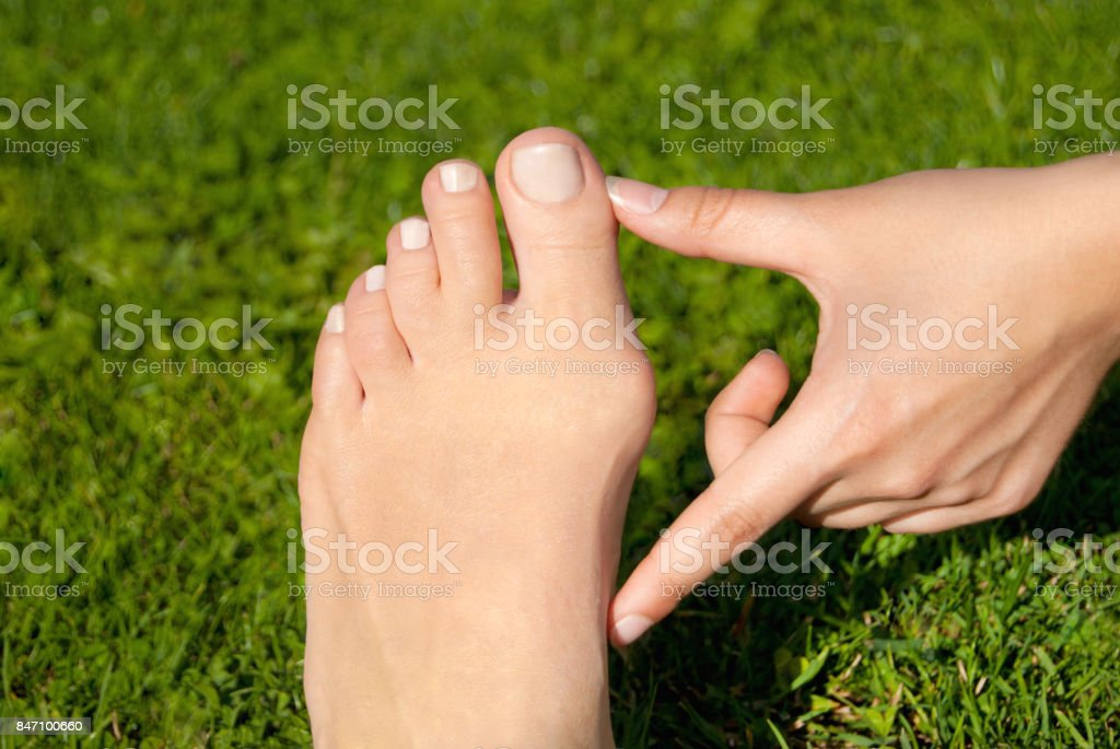 Hallux valgus, bunion in woman foot on grass background stock photo