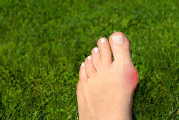 hallux valgus, bunion in woman foot on grass background - callo foto e immagini stock
