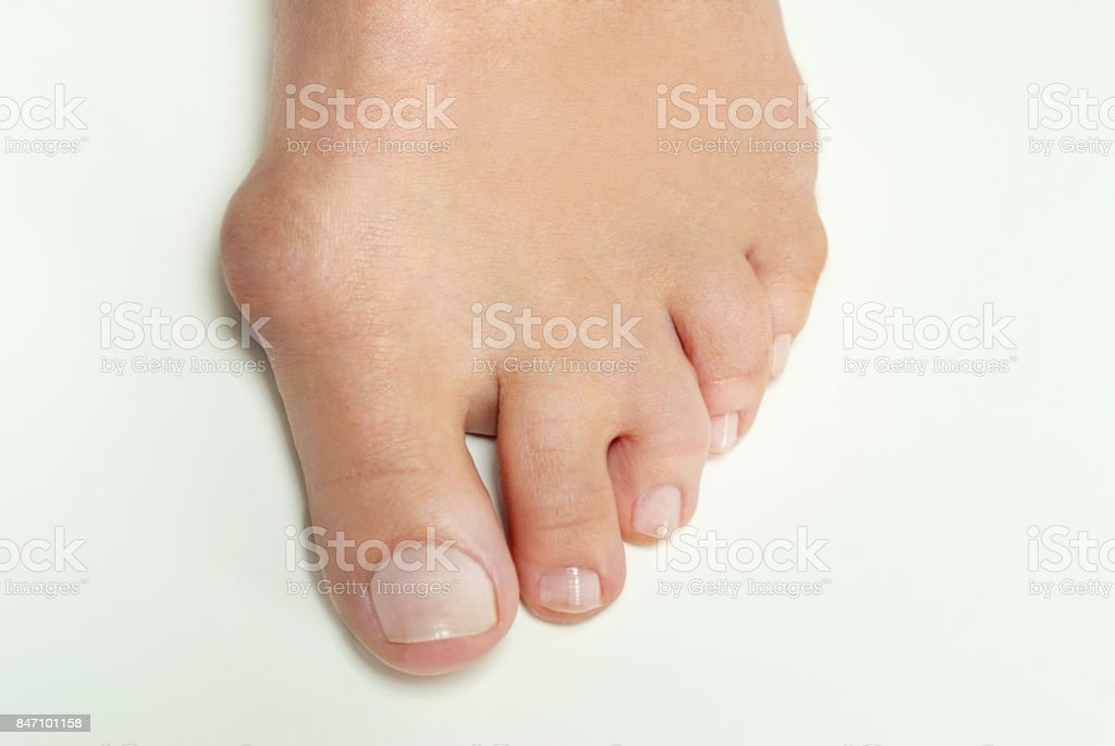 Hallux valgus, bunion in woman foot on white background stock photo