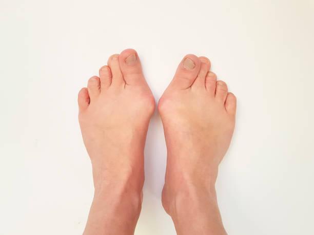 hallux valgus, pies aislados - enfermedades de los pies fotografías e imágenes de stock