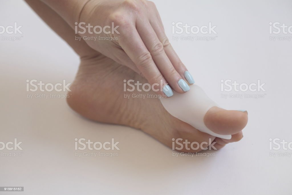 Hallux valgus. Gel bunion toe spreader. stock photo