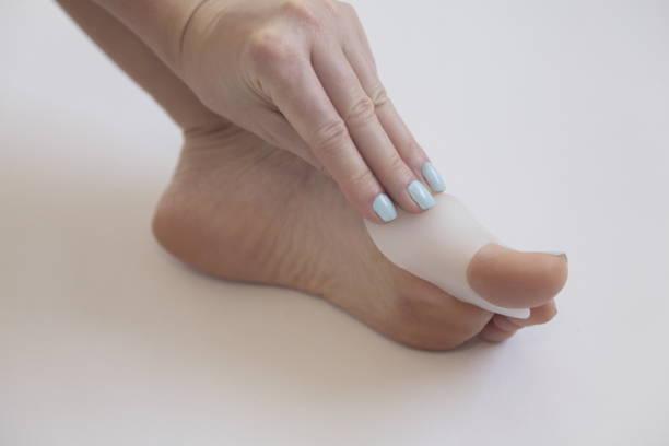 Hallux valgus. Gel bunion toe spreader. stock photo