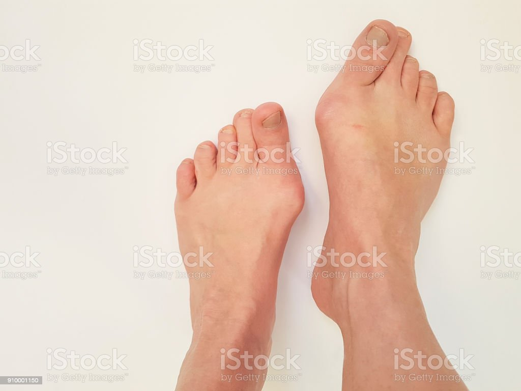 articulações das pernas