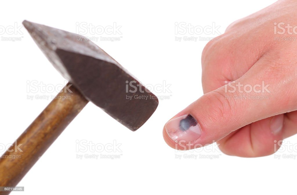 Hammer and finger with black bruised nail on white background stock photo