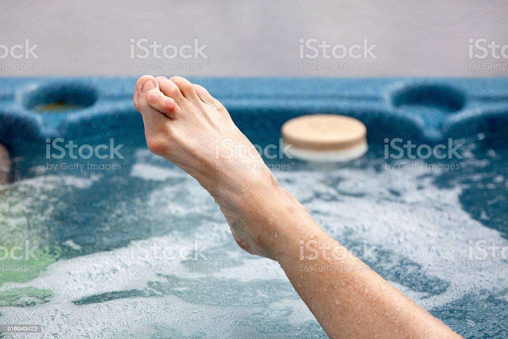 Hammer Toe and Bunion stock photo