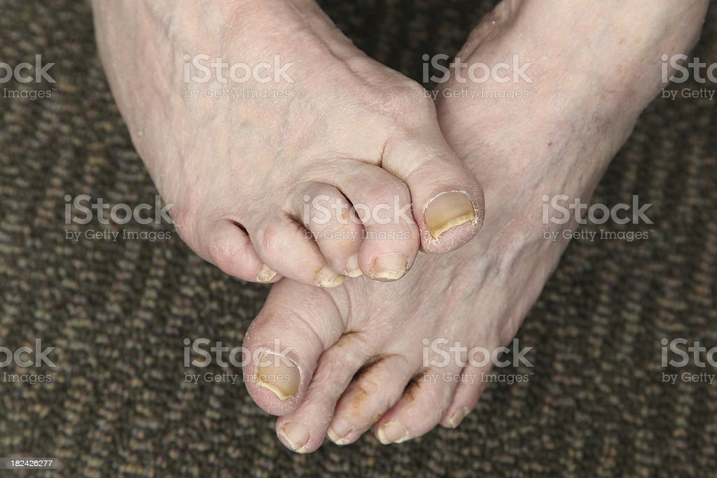 Hammer toe stock photo