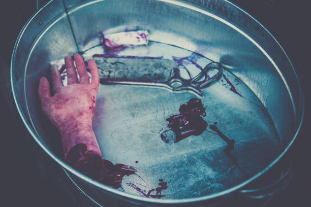 Hand amputated by a medical saw, as an illustration of the work of doctors during the war or illegal activities of surgeons or crime scene. Toned image stock photo