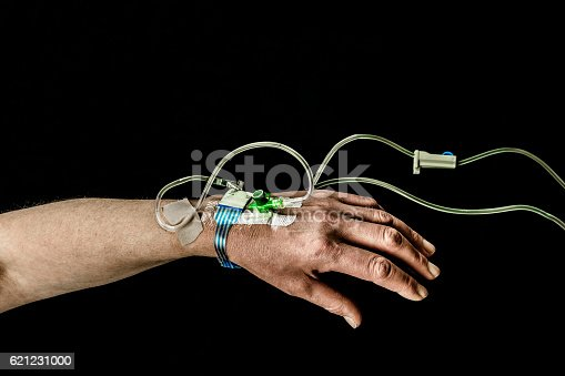 Hand And Arm Of Patient With Iv Treatment Stock Photo & More Pictures of Black Color