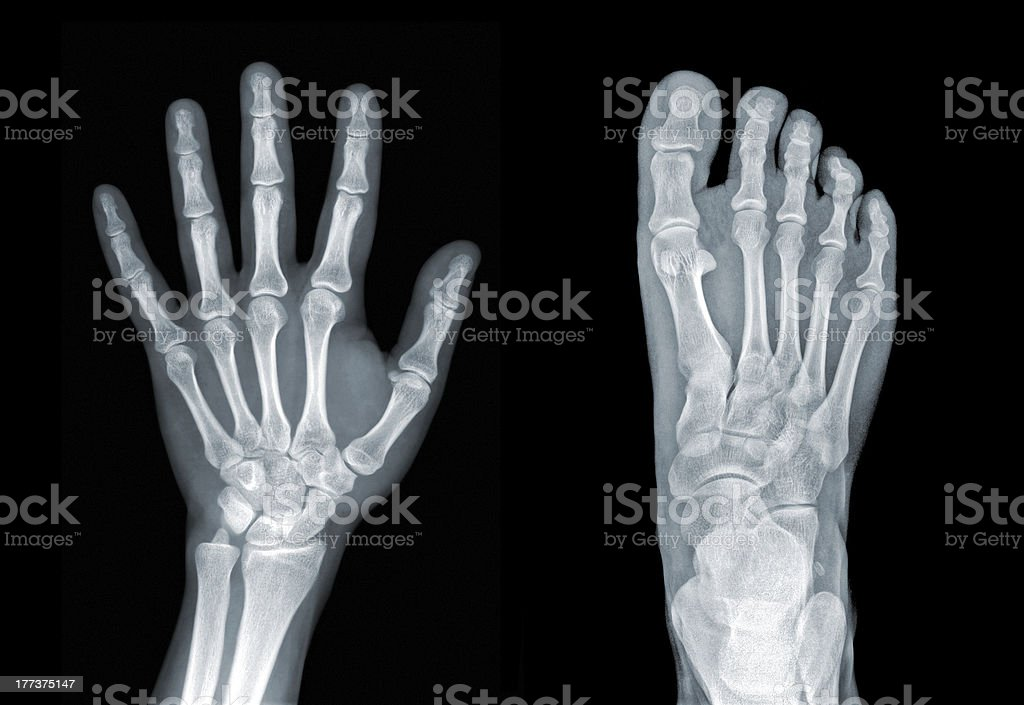 Hand And Foot Roentgenogram Stock Photo & More Pictures of Anatomy ...