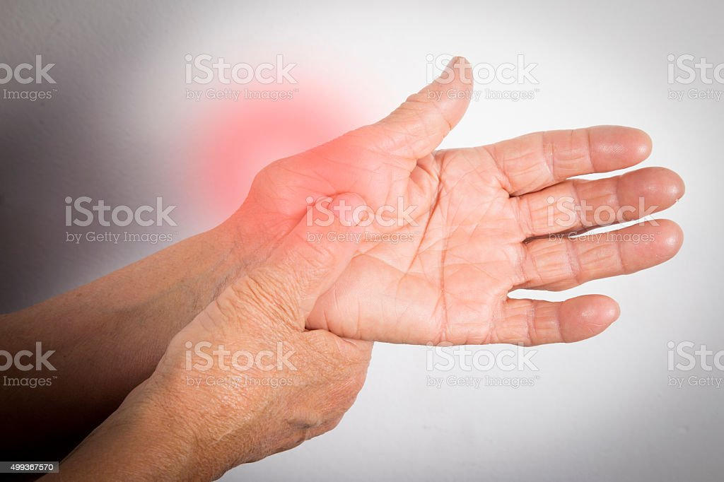 Hand Deformed From Rheumatoid Arthritis stock photo