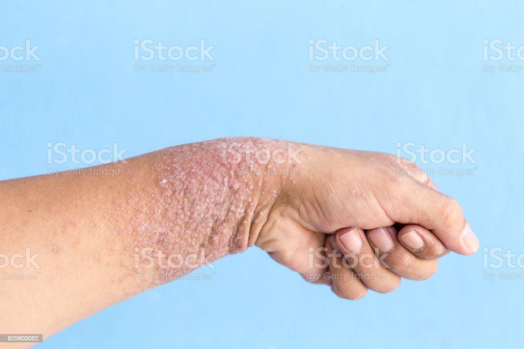 Dermatitis, Ekzeme an Hand. – Foto