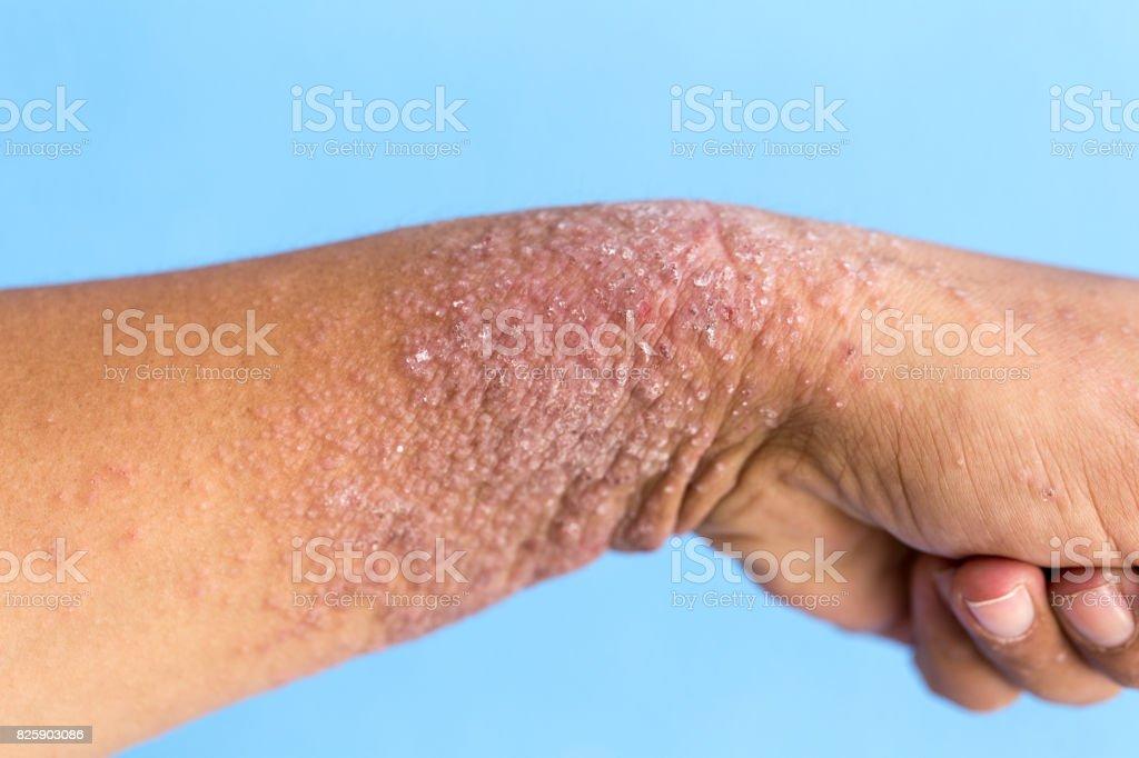 Hand dermatitis, Eczema on hand. stock photo
