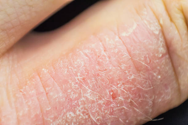 Best Seborrheic Dermatitis Stock Photos, Pictures & Royalty