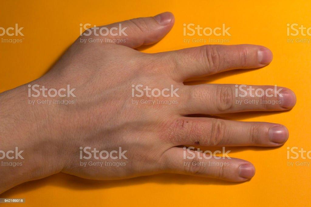 手の甲 湿疹