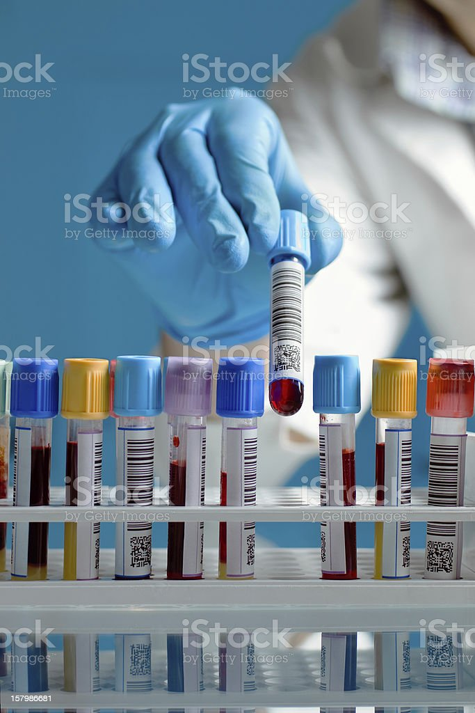 hand drawing a blood sample tube stock photo
