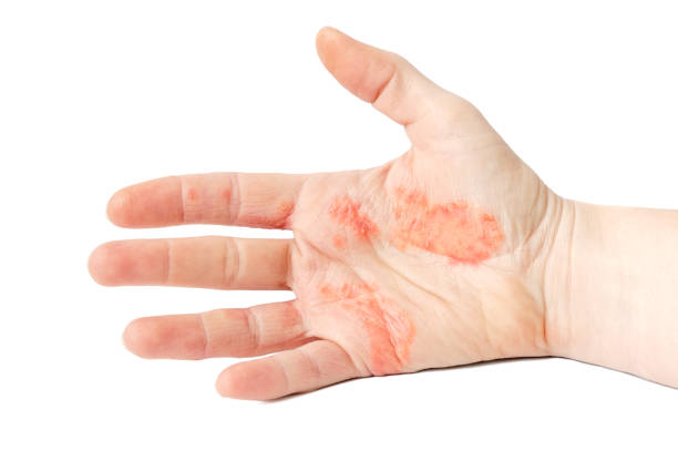 Hand Eczema Close-up photo of a hand suffering of eczema blister stock pictures, royalty-free photos & images