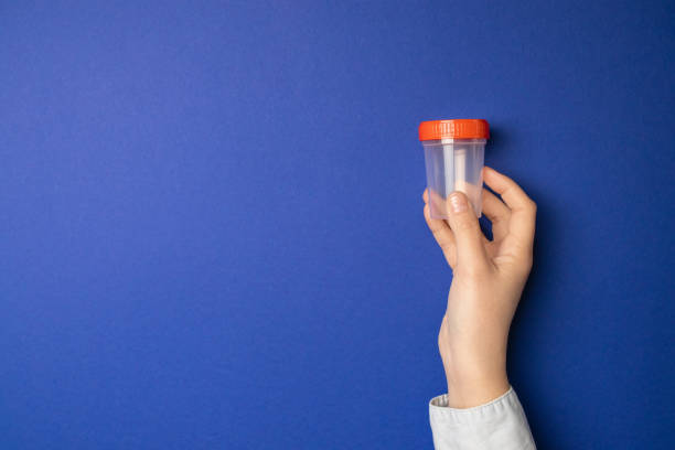 Hand holding empty plastic container Doctor holding sample cup. Medical test for urine in hospital. sperm stock pictures, royalty-free photos & images