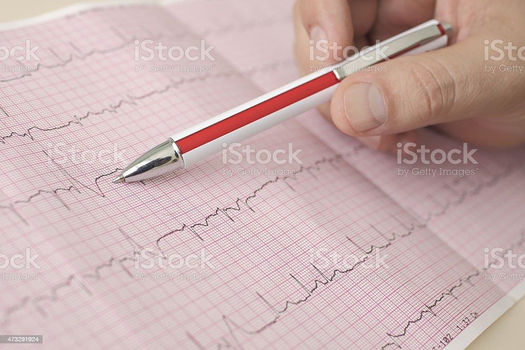 Mão segurando a caneta indica batidas de ECG - foto de acervo