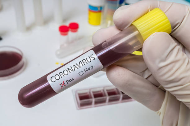 Hand holds test tube for Coronavirus 2019-nCOV analysis. Hand holds test tube for Coronavirus 2019-nCOV analysis. modern period stock pictures, royalty-free photos & images