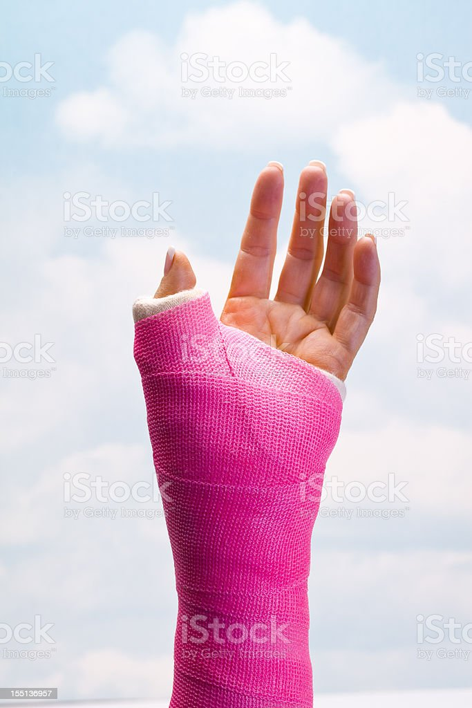 Hand in Cast stock photo