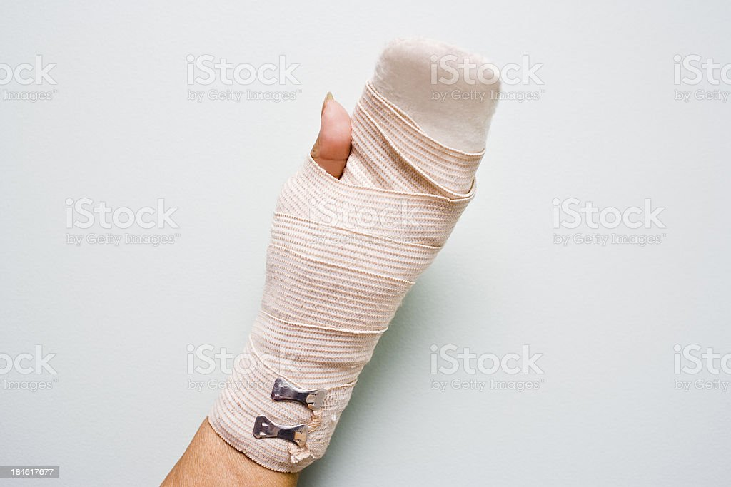 Hand Injury royalty-free stock photo