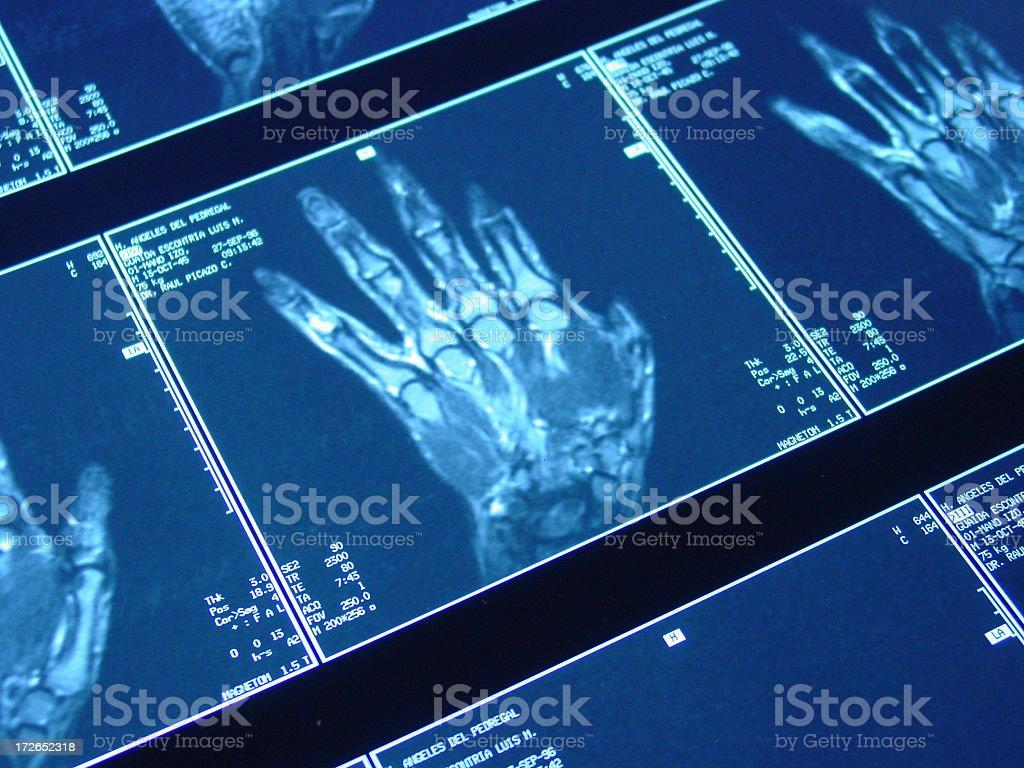 hand MRI royalty-free stock photo