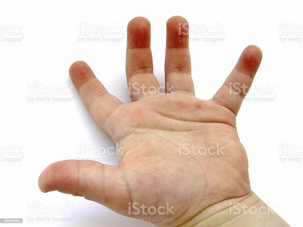 Hand of a Child - Royalty-free Accessibility Stock Photo