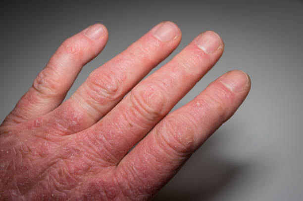 hand of a psoriasis patient close-up. psoriatic arthritis. joint deformation and inflammation on the skin. photo with dark vignetting. soft focus. - artrite foto e immagini stock