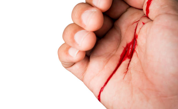 Hand of man injured wound  accident blood on white background stock photo