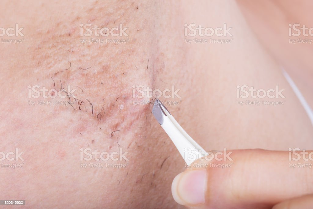 hand of woman plucking hair in her armpit stock photo