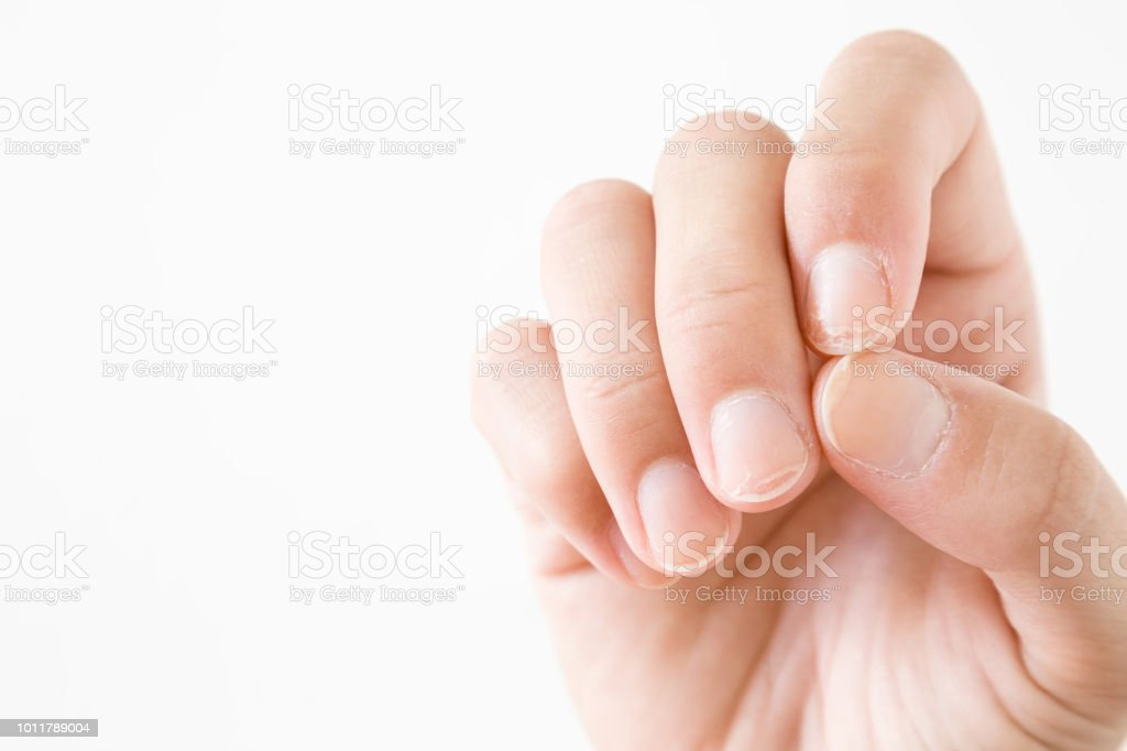 Hand on the white background. Dry, damage nails. Woman's issues. Problem and solution. Empty place for text. stock photo