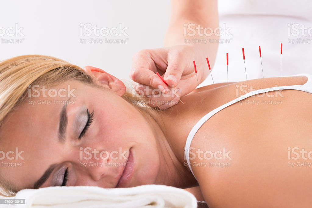 Hand Performing Acupuncture Therapy On Customer's Back - foto de stock