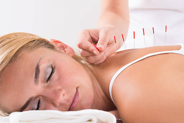 Hand Performing Acupuncture Therapy On Customer's Back stock photo
