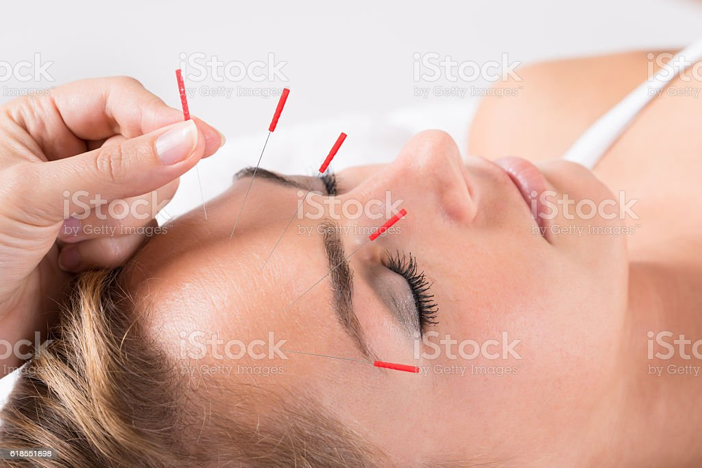 Hand Performing Acupuncture Therapy On Head stock photo