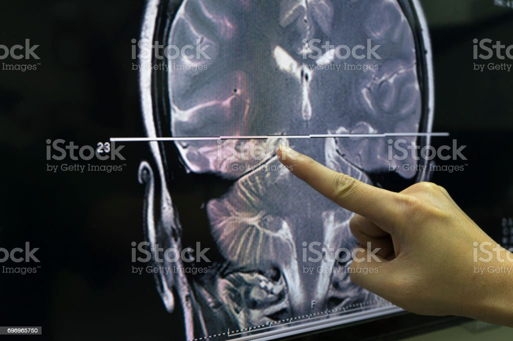 A Hand Pointing At Mri Of The Brain Stock Photo & More Pictures of ...