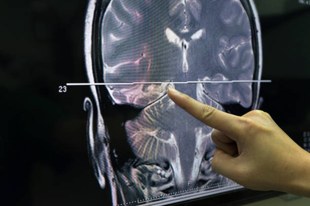 A hand pointing at MRI of the brain stock photo
