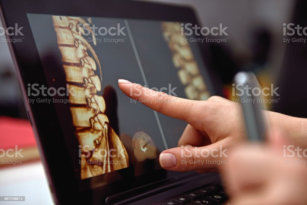 Hand pointing on X-rays stock photo