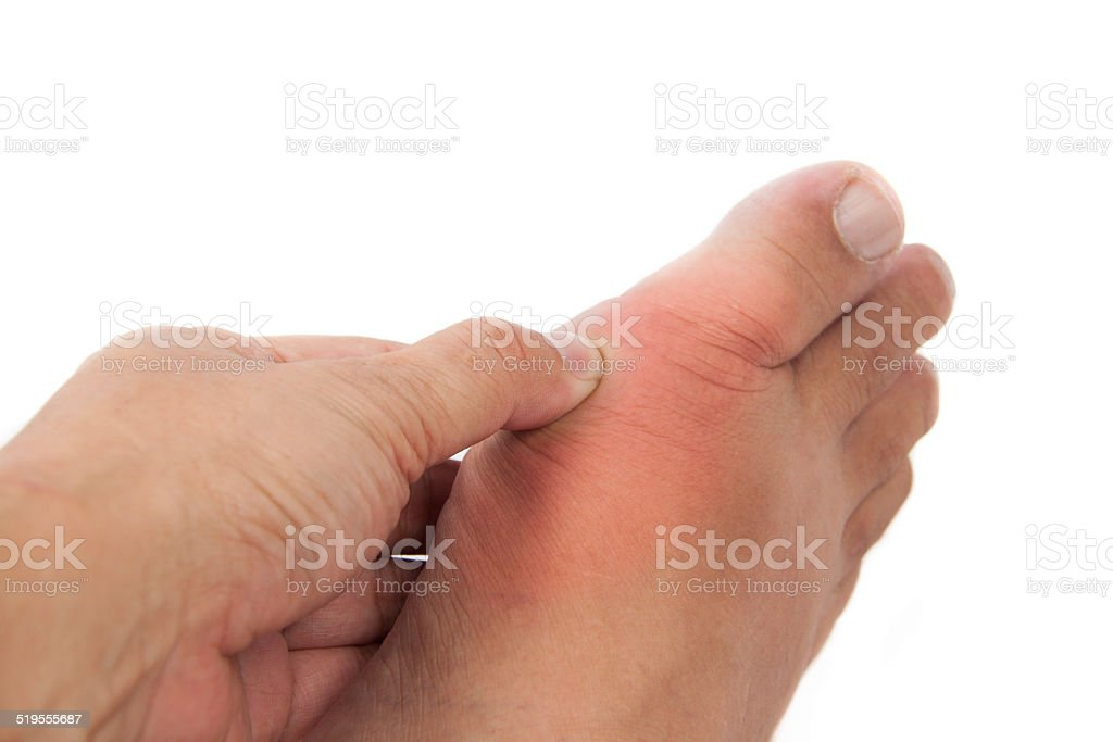 Hand pressing on foot inflammed with gout. stock photo
