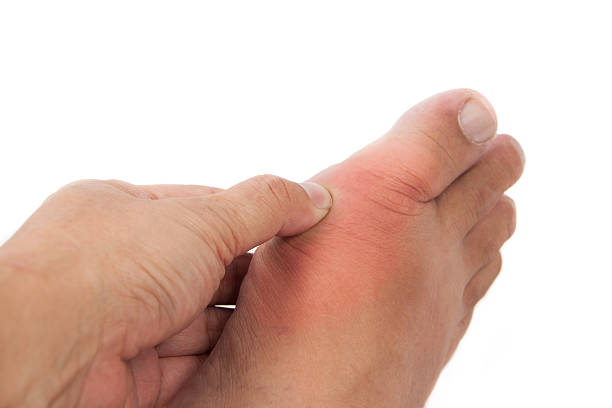 Hand pressing on foot inflammed with gout. Hand pressing on the part of the foot inflammed with gout. gout stock pictures, royalty-free photos & images